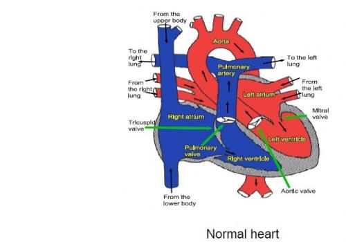 Conditions - Leeds Congenital Hearts
